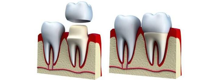 Dental Crowns Papatoetoe Dental