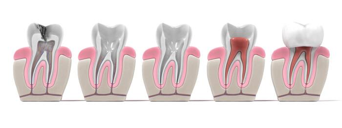 Root Canal Papatoetoe Dental