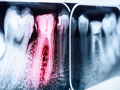 Root Canal Treatments